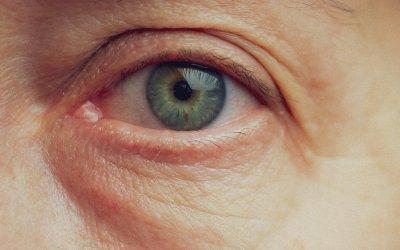 Ako odstrániť vačky pod očami? Toto funguje!