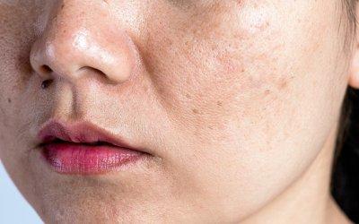 Hnevá ťa mastná pleť s rozšírenými pórmi? Tieto recepty zaiste oceníš