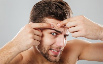 Čo znamenajú vyrážky na brade alebo na čele? Podľa ich umiestnenia zistíš problém!