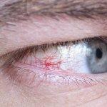 Prasknutá cievka v oku: Zisti príčinu a neignoruj signály tela!