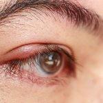 Jačmeň na oku: Ako sa ho zbaviť domácou liečbou?
