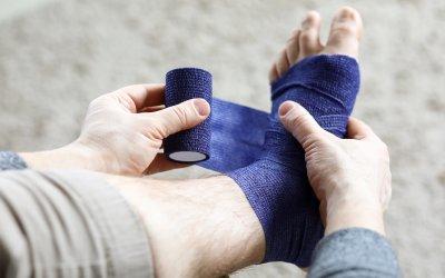 Obklady na opuchnuté nohy: Úľavu prinesie kapustový aj bylinkový