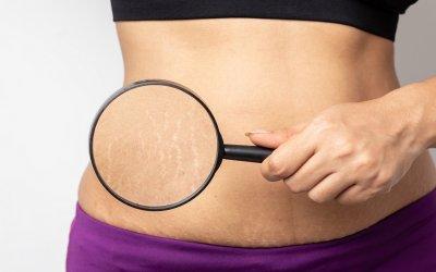Čo funguje na strie v tehotenstve a po ňom? Je lepší olej alebo krém?